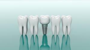 dental implants Henrico